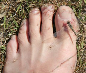Dragonfly on my toe in Africa, Roger J. Wendell 04-20-2012